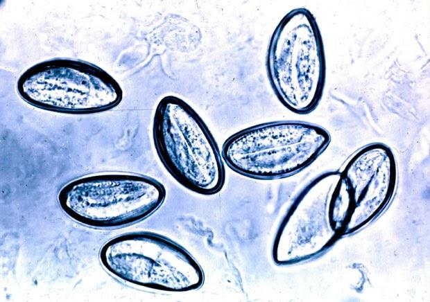 enterobiasis y oxiuros