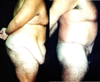 Excess Fat Removal 88