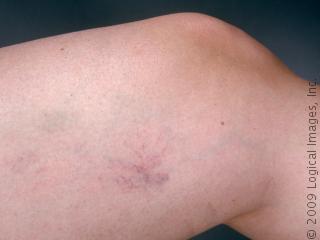 tratament vase de sange sparte pe picioare