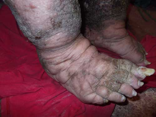 Feet Ugly Porn Picture 12