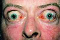 Graves Disease Exophthalmos