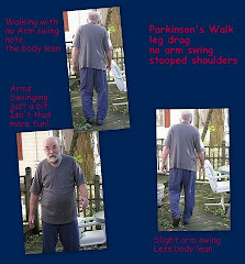 Posture and Gait as a symptom of PD