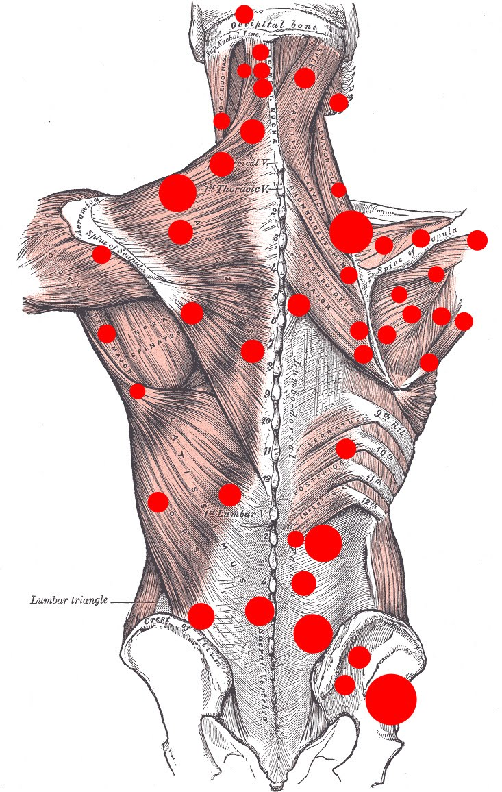 All about Everything: Back Muscle Pain - Back Pain Treatment