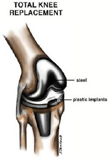 total knee replacement image
