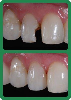 Restauracao Prateada Ou Da Cor Do Dente Blog Papo De Dentista