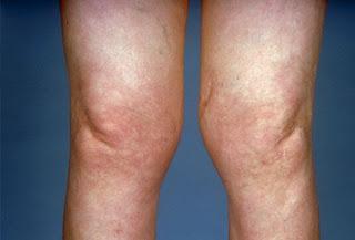 [Image: PRinc_rm_photo_of_knees_with_osteoarthritis.jpg]
