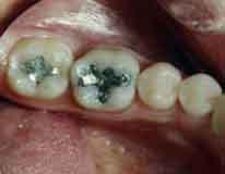 Berbagai macam bahan tambal dikenal dalam dunia kedokteran gigi. Amalgam 9320c66953