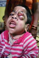 https://i0.wp.com/4.bp.blogspot.com/_Noq9ZZmoEcM/TA87yU0Ru7I/AAAAAAAAARw/okDQatqmzpY/s1600/Bhopal+gas.jpg-2.jpg