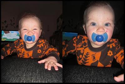 vattkoppor bebis 7 månader