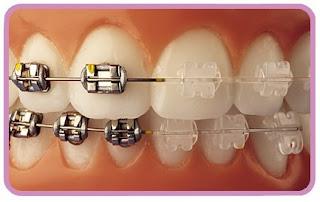comparacion brackets esteticos y metalicos ortodoncia