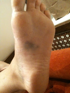 Bruising on bottom of s feet