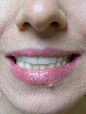 Zirkonyum Diş kaplama Diş Hekimi