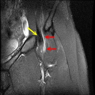 Musculoskeletal and Orthopedic MRI: Snapping Hip- Internal ...