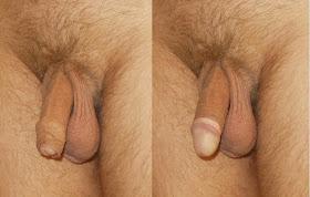 Omskuren Penis