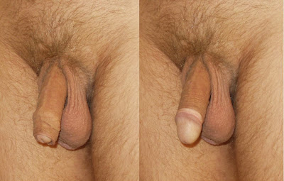 disadvantages of small penis