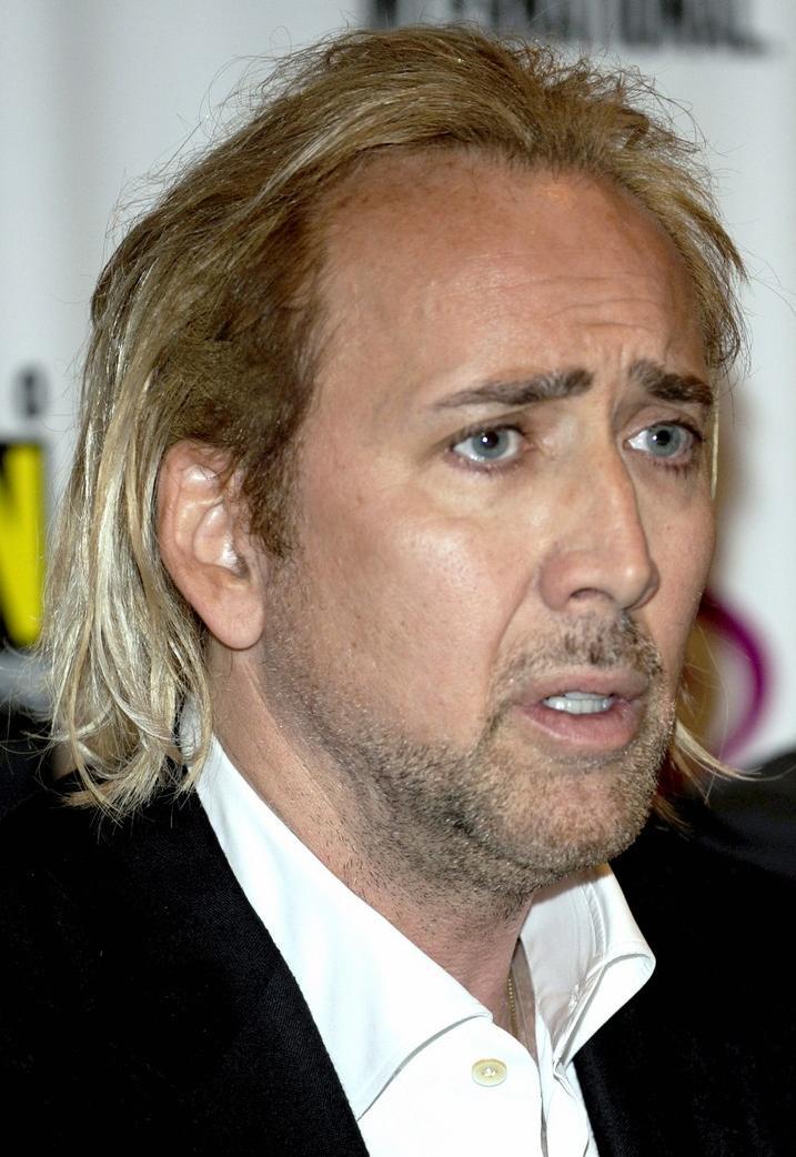 Nicolas+Cage+Hair+Transplant+2.jpg