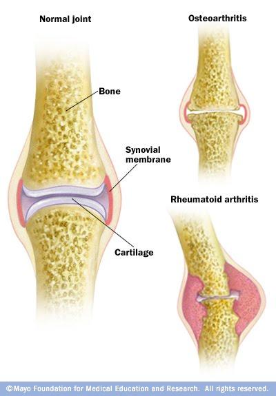 Healthy Life: Arthritis… Osteoarthritis vs Rheumatoid ...