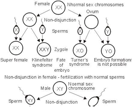 chromosome sex disorder in Sudbury