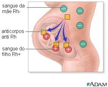 cãibras nas pernas gravidez sinal precoce