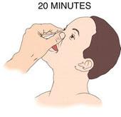 pinching nose to stop nose bleed