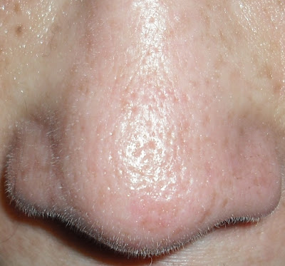 large pores on nose - photo #13