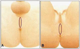 El perineo o periné es el piso de la pelvis, que en su parte externa se extiende desde el ano al escroto en el hombre (A) y desde el ano a los labios mayores en la mujer (B).