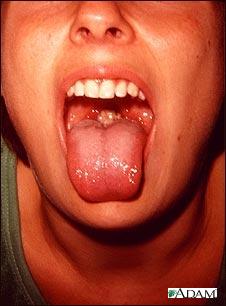 inflamación de las amígdalas (amigdalitis)