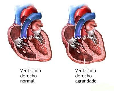 Regurgitación tricuspídea leve moderada hipertensión severa