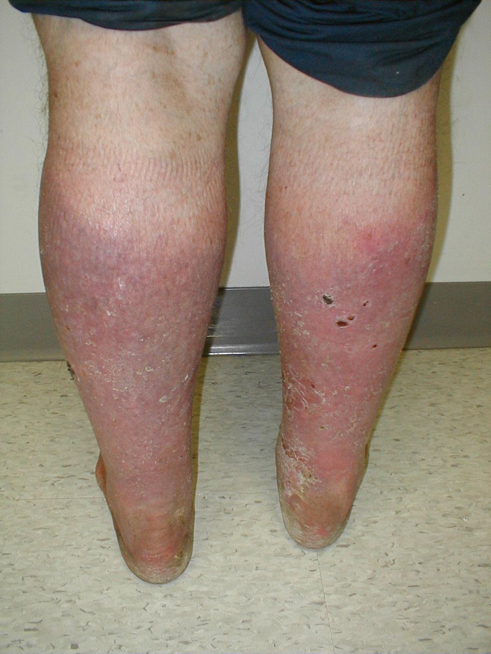 piernas con insuficiencia vascular crónica