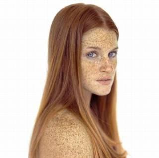 Freckles 18 pics