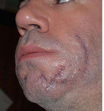 Advice: Shaving Around A Scar Or A Mole - Sharpologist