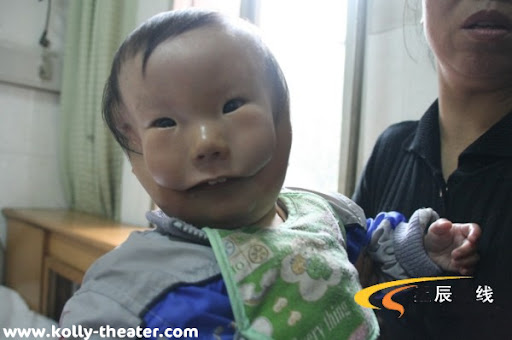 Baby born with two faces