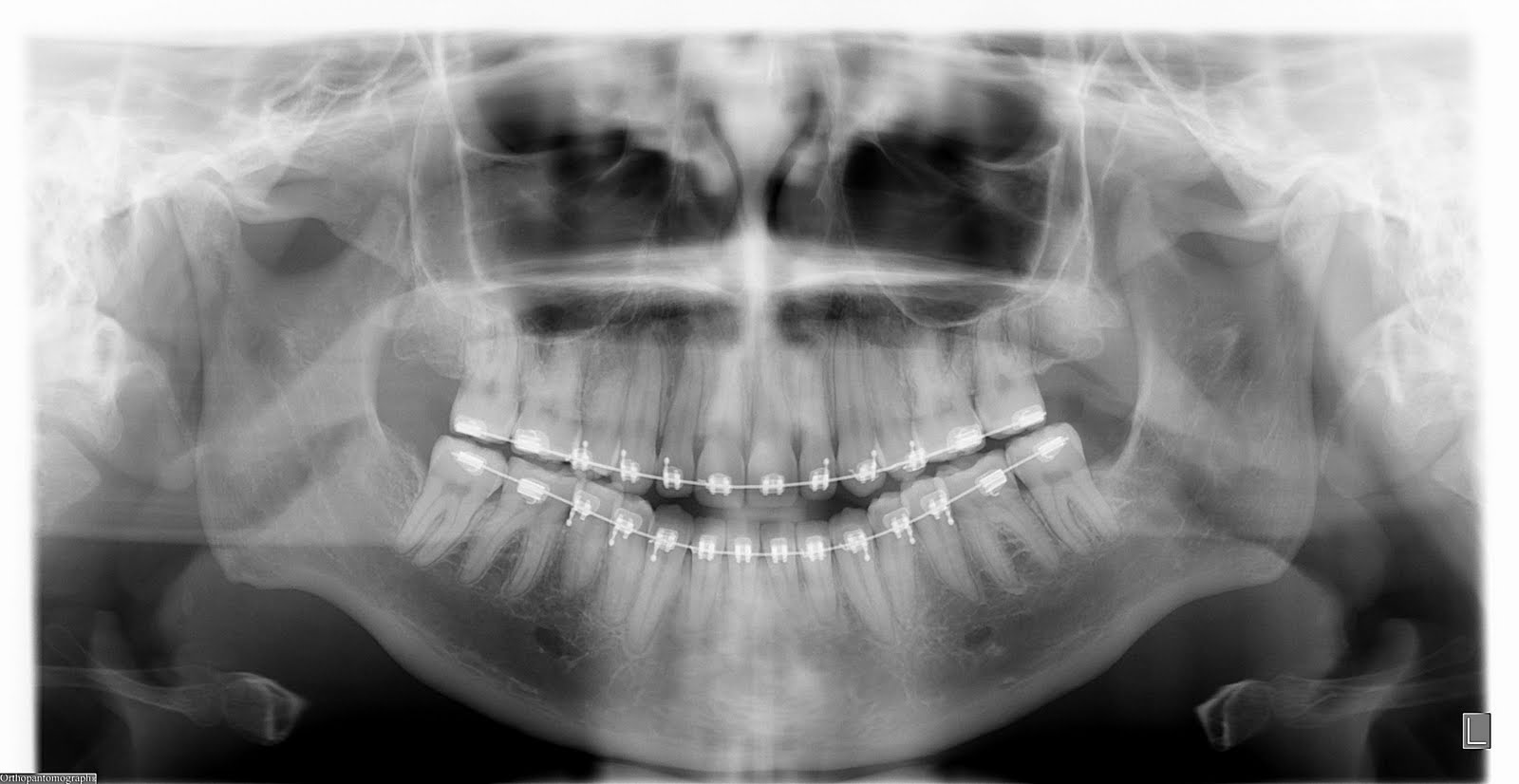 xray of front teeth - photo #18