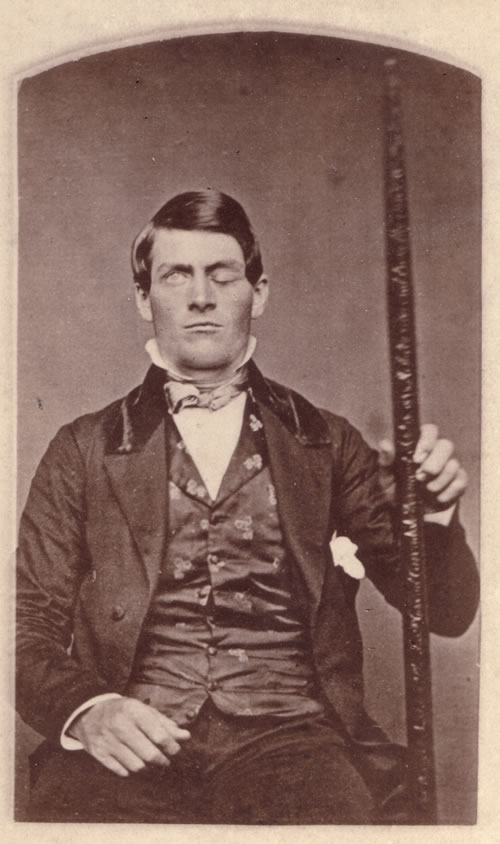 Brain case study: Phineas Gage