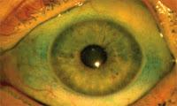 Olho com coloração com lisamina verde
