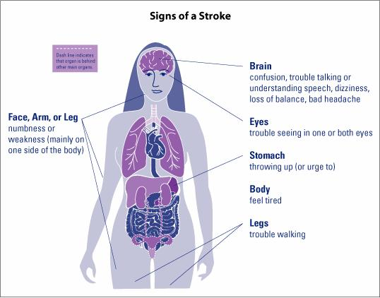 7 Stroke Symptoms and Key