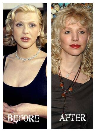 Plastic Surgery Before After Courtney Love Plastic Surgery