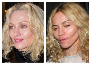 Plastic Surgery Celebrity Before And After Madonna