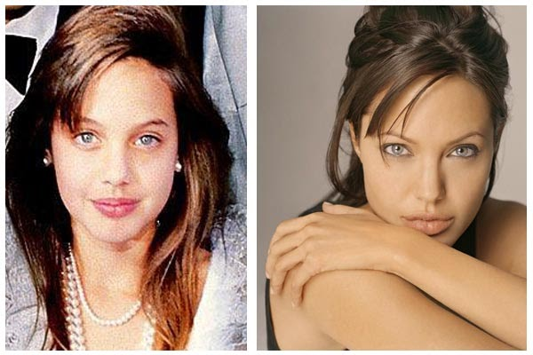 Plastic Surgery Before And After Angelina Jolie Plastic