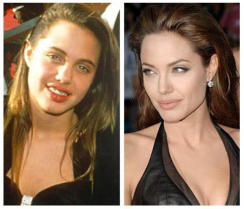 Plastic Surgery Before And After: Angelina Jolie Plastic ...