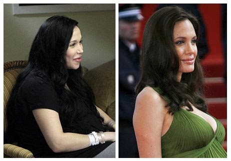 Plastic Surgery Before And After Nadya Suleman Plastic