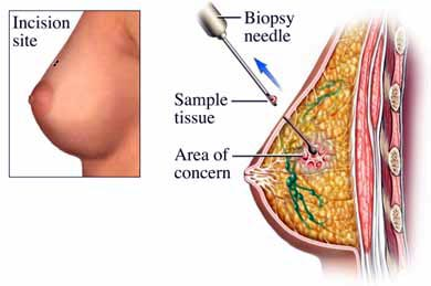 breast cancer without lumps jpg 1152x768