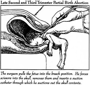 goverment project: Types of Abortion's