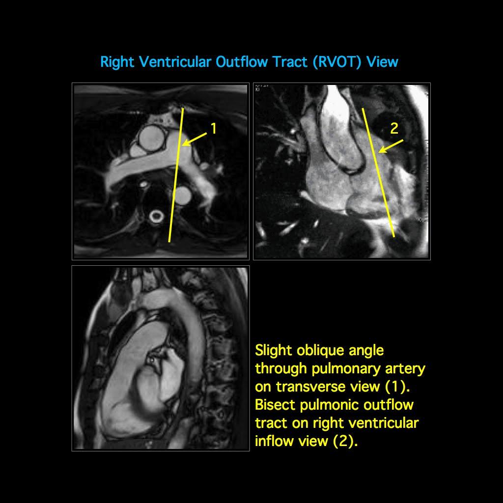 MRI BLOG: Cardiac MRI