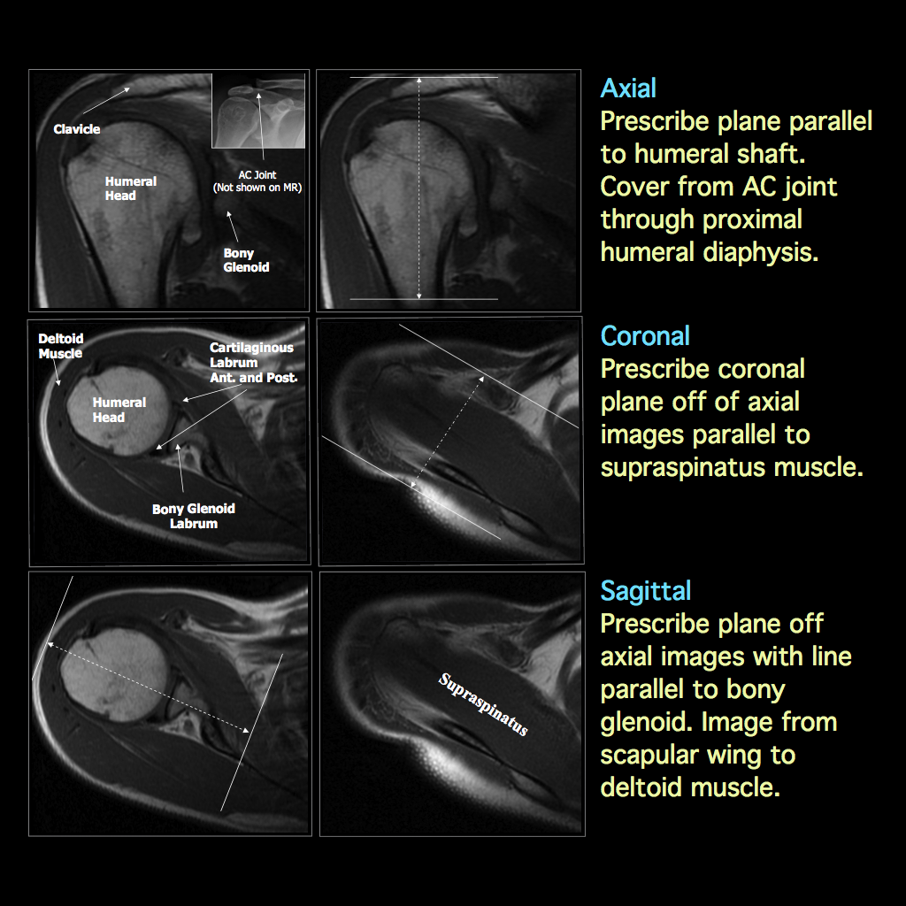 MRI BLOG: Shoulder MRI