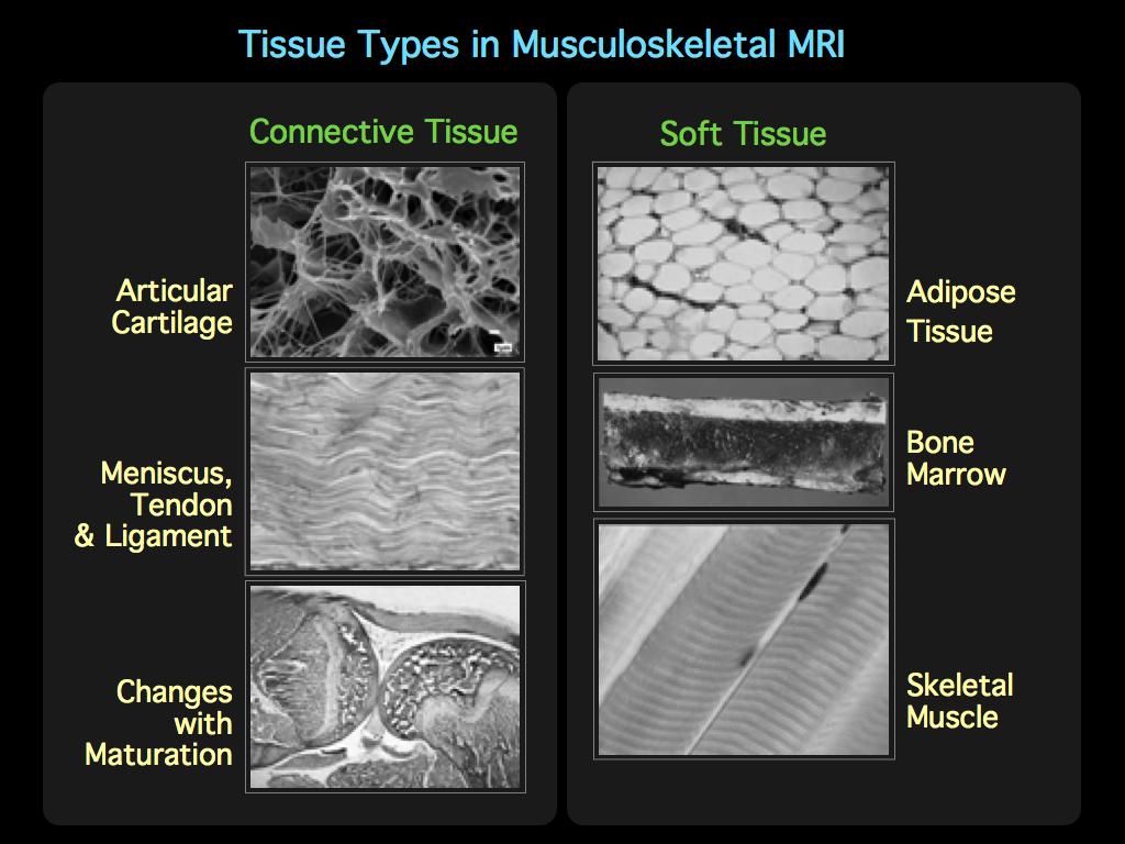 MRI BLOG: Musculoskeletal MRI 101 (I/II)