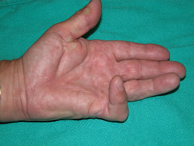 Doctors Gates: Dupuytren's contracture Pic and shape of incision