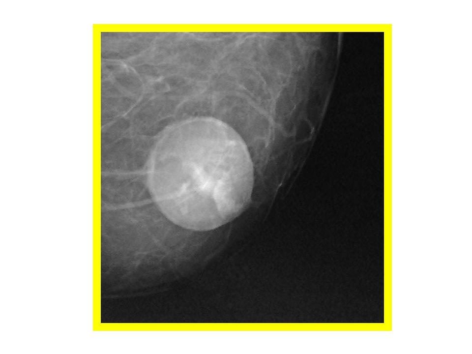 ON - RADIOLOGY: Oil Cyst or Fat necrosis