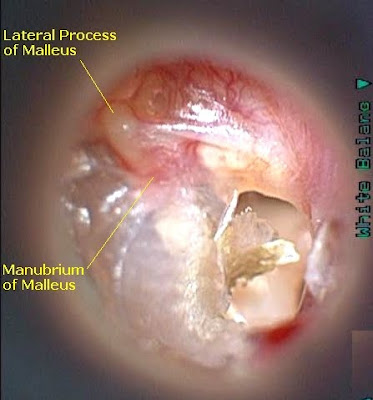Doctors Gates Pictures Of Tympanic Membrane Perforation