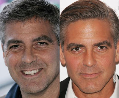 Eye bag removal george clooney